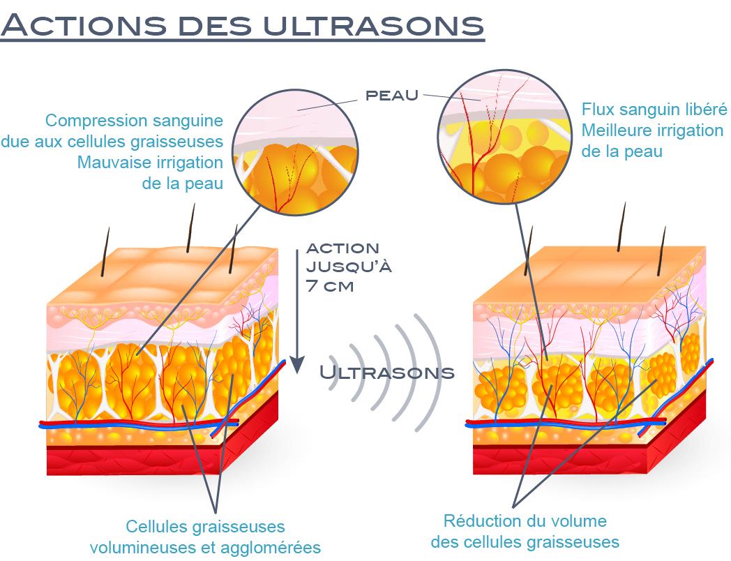 Effets des ultrasons anti cellulite et contre la masse graisseuse